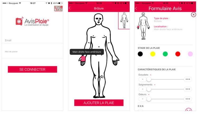 AvisPlaie, une application pour résoudre les retards de cicatrisations
