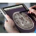 Une étude mondiale met en évidence les risques pesant sur l'adoption de technologies mobiles